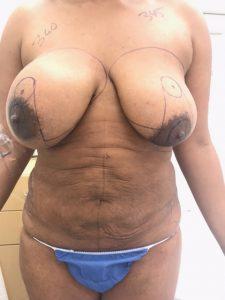 Ruptured Left Breast Implant