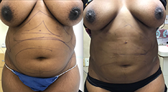 Liposuction Of The Mid Section