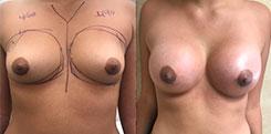Breast Augmentation Using Saline Implants
