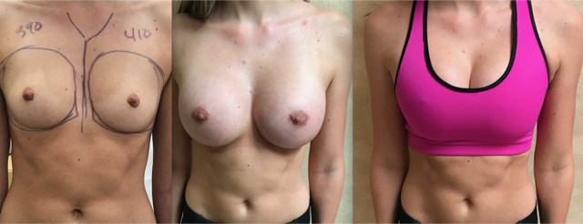 Before, After and Gym Bra Breast Augmentation by Dr. Linder