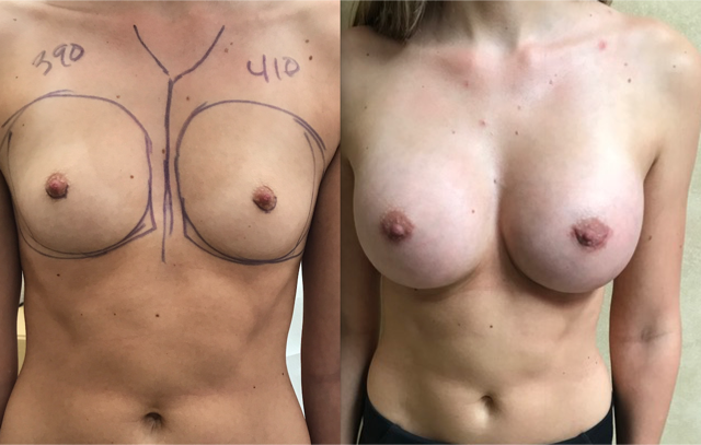 Breast Augmentation Is a Very Gratifying Procedure
