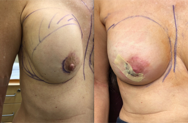 Total Capsulectomy of the Right Breast