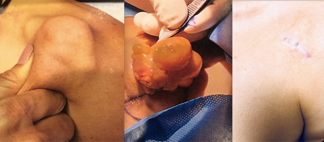 Tumor Removal Before and After Photos