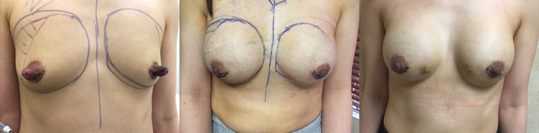 Nipple Hypertrophy Correction