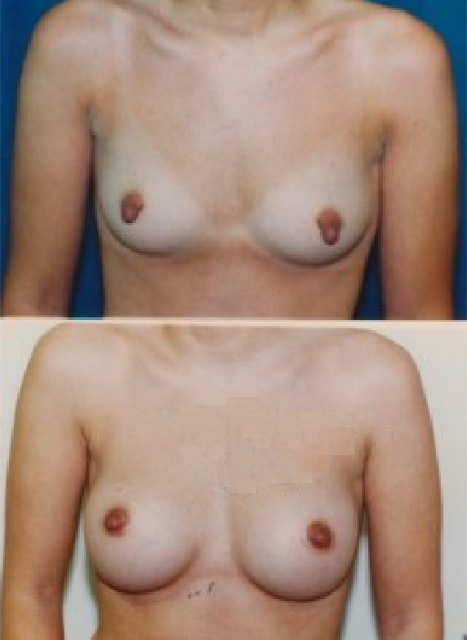 Nipple Hypertrophy Correction Before and After Photo Two