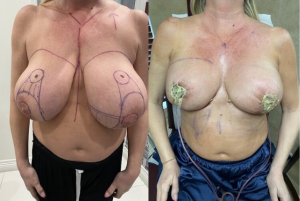Before and after image of a breast reduction in Beverly Hills. Patient went from F-cup to D-cup.
