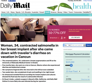 Daily Mail Article About Salmonella in Breast Implant