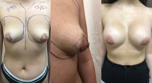 Tuberous Breasts Before and After