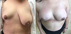 Breast Asymmetry Before and After photo