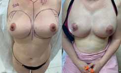 breast-augmentation-894