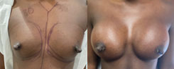 Breast Augmentation With Nipple Reduction