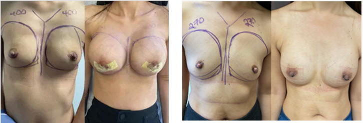Breast augmentation before and after examples performed in Beverly Hills