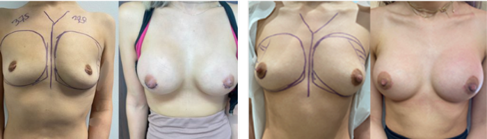 Breast augmentation before and after performed in Beverly Hills